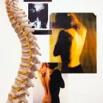 soulager les maux de dos avec les remedes naturels suite et fin