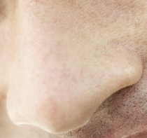Sympathicotherapie, c'est quoi exactement et en quoi cela peut vous aider ?